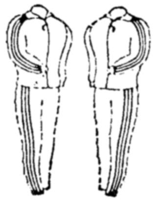 Rechtspraak: Sta op uw strepen (op kleding en schoenen)